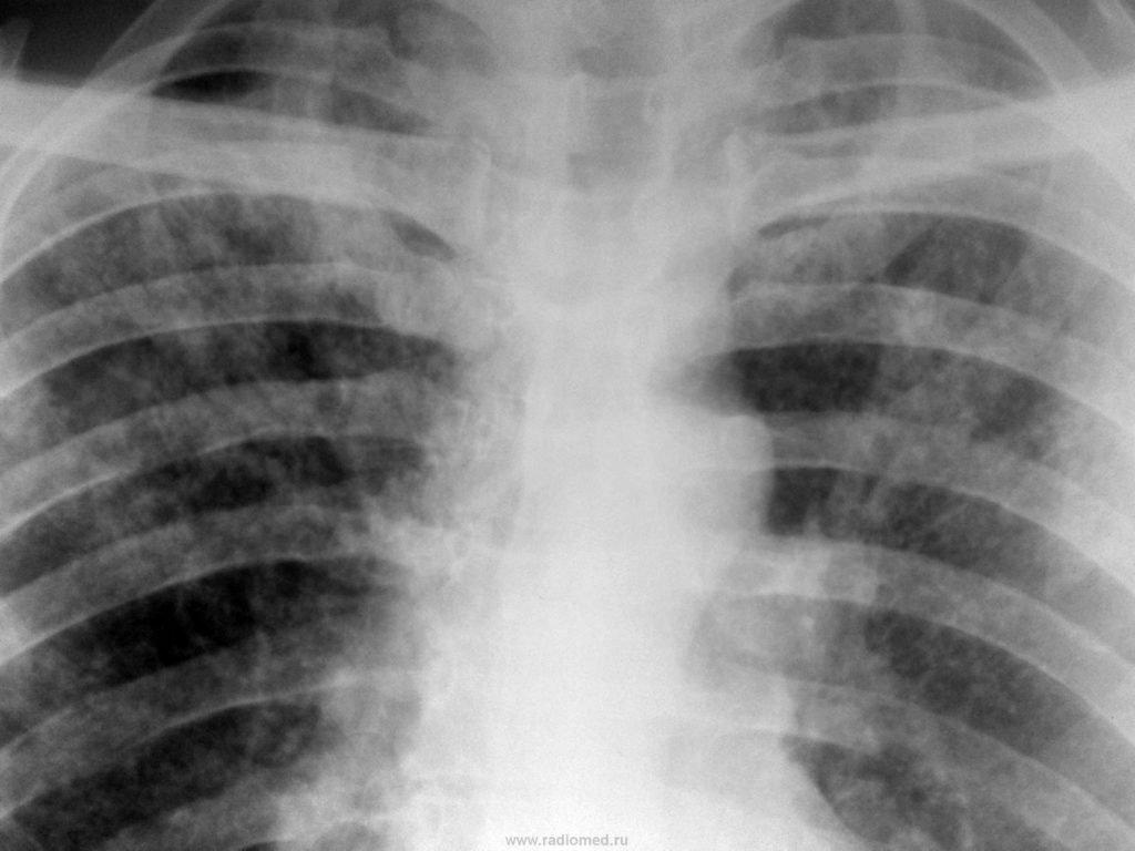 Tuberculoză - Pierdere în greutate tbc 2