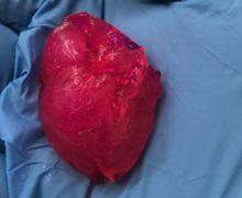 Американские ученые создали человеческое сердце на3D-принтере