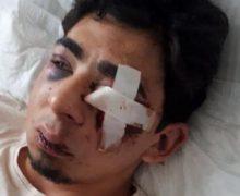 Двух молодых людей жестоко избили вцентре Кишинева. Один изних вбольнице втяжелом состоянии