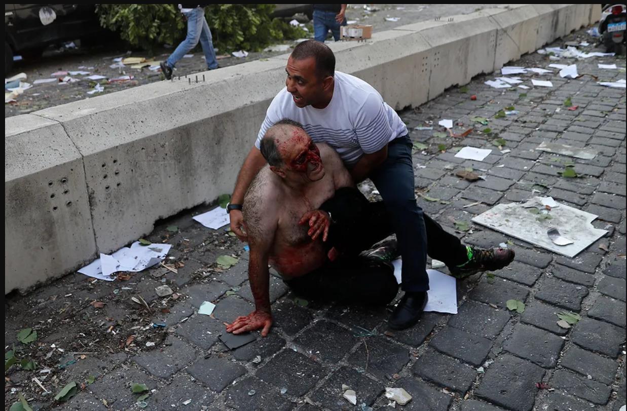 (UPDATE) FOTO Cel puțin 100 de de morți și peste 4 000 de răniți în urma exploziei din Liban
