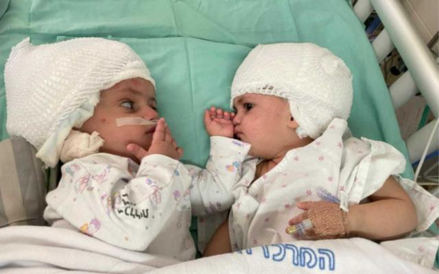 Două siameze care avea craniile unite au fost separate cu succes în Israel, după luni de pregătiri (VIDEO)
